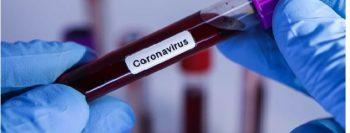 É Fake ! Cuba não criou vacina contra o coronavírus –